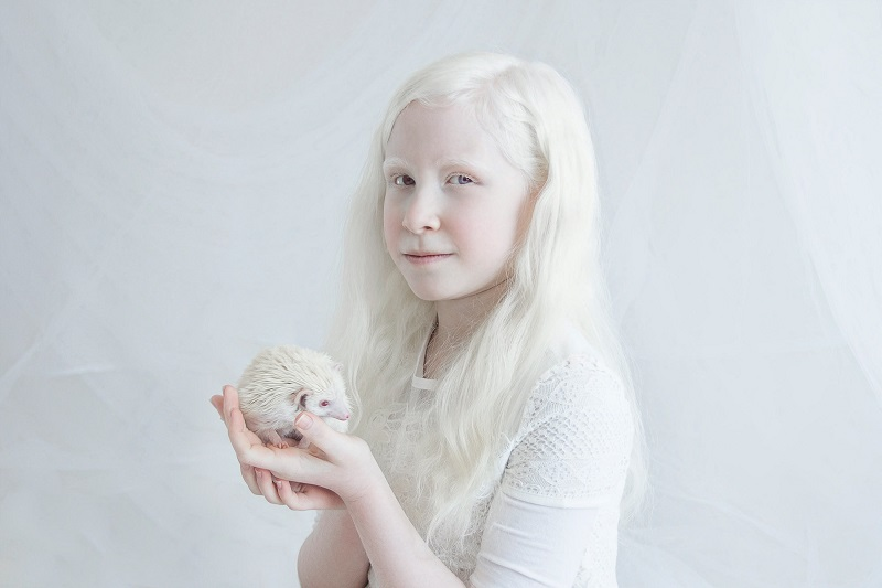 Yulia Taits Captures The Pure Natural Beauty of Albinism in Porcelain Beauty 2